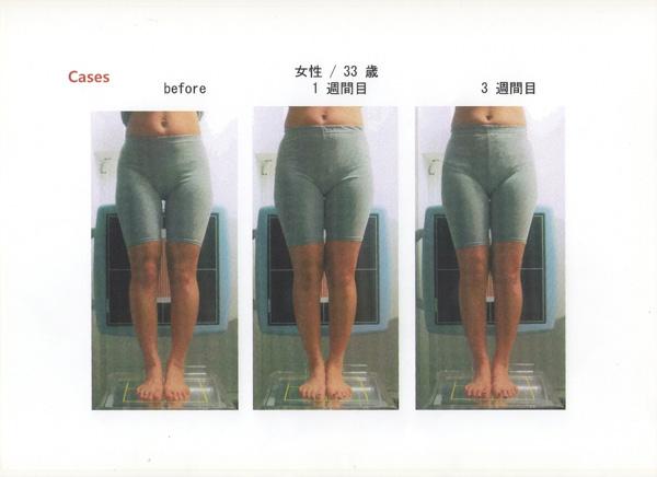 骨盤、痛み、膝痛、美脚にO脚プログラム